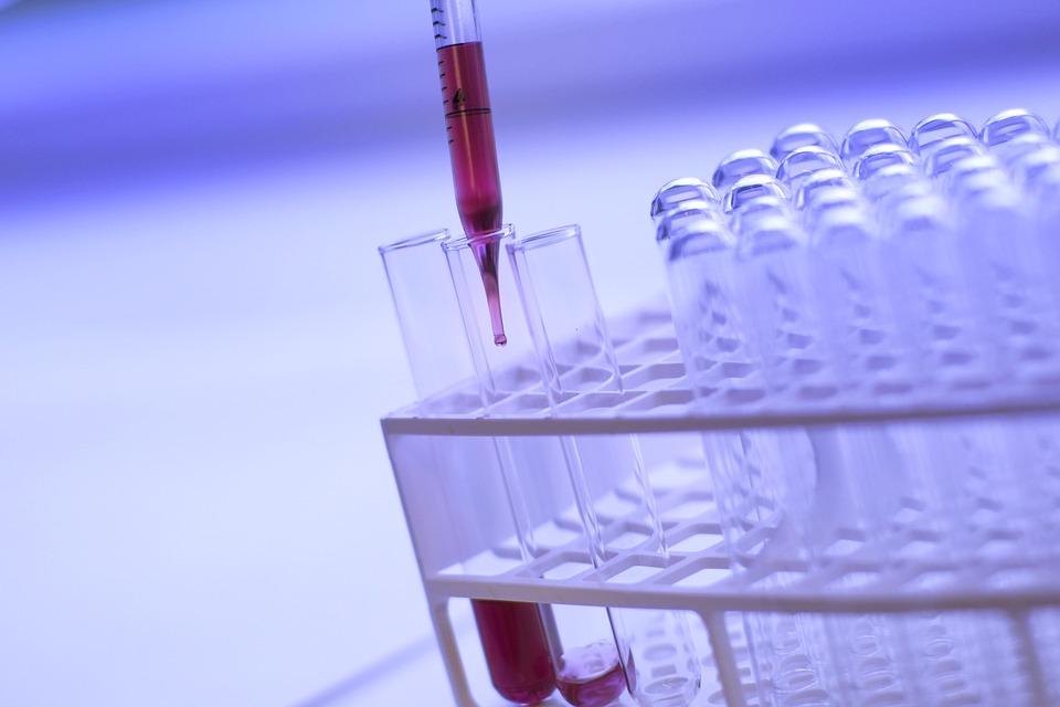 Nové objevy při výzkumu Alzheimerovy choroby